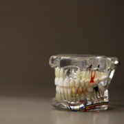 Root Canals For Troutdale Patients
