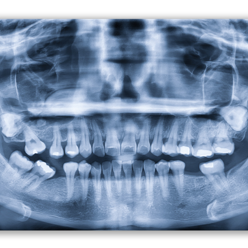 Michael McKeel Family Dentistry_Oral Surgery