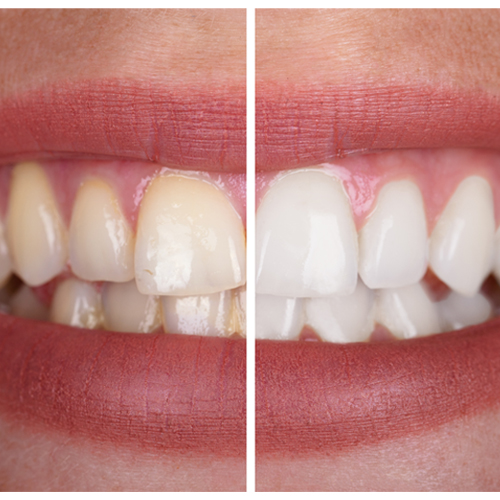 McKeel_Family_Dentistry_Teeth Whitening in Clackamas
